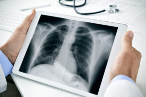 Forschungsgesellschaft Atemwegerkrankungen COPD Asthma Lungenkrebs
